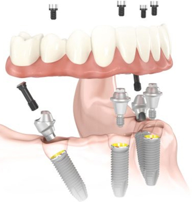 Diagram of All-on-4 dental implants with a denture hovering above the implants. This system is available from Siny Thomas, DDS of Sugar Land.