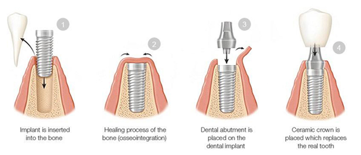Diagram of four phases of the dental implant process, including fixture insertion, healing, abutment placement, and crown placement; from Siny Thomas, DMD of Sugar Land, TX