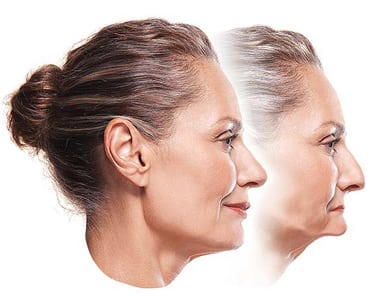 Two side-by-side profile photos of a middle-aged woman with her normal facial appearance in the forefront and a facial collapse with sagging features in the background.