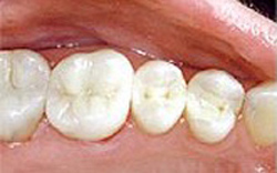 Mercury-free dentist after photo of lower molar teeth that had silver fillings replaced with composite.