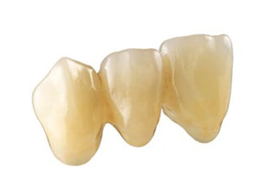 Three connected ceramic crowns, which are metal free.