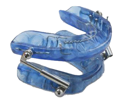 Photo of the a blue Herbst oral appliance with upper and lower trays that fit over the teeth and that are connected by side hinges.