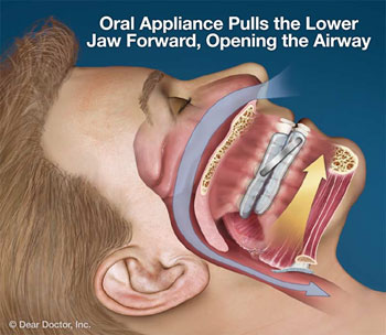 Diagram of a man sleeping and wearing a sleep apnea oral appliance that repositions his lower jaw; from Sugar Land dentist Dr. Siny Thomas.