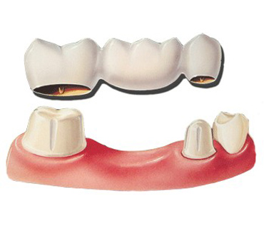 Diagram of a three-crown dental bridge for a comparison with an implant.