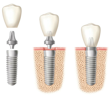 Diagram of a dental implant for comparison with a dental bridge.