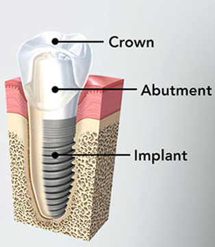 Diagram of dental implant components that must be properly placed to prevent implant failure, including the root form, abutment, and crown.