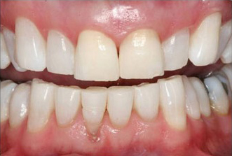 After KoR whitening photo of white bright teeth