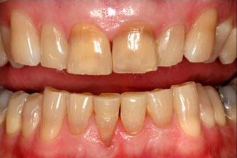 Before KoR whitening photo of dark stained teeth