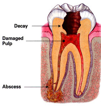 Diagram of a tooth in need of root canal treatment due to decay, damaged pulp, and an abscess at the root.