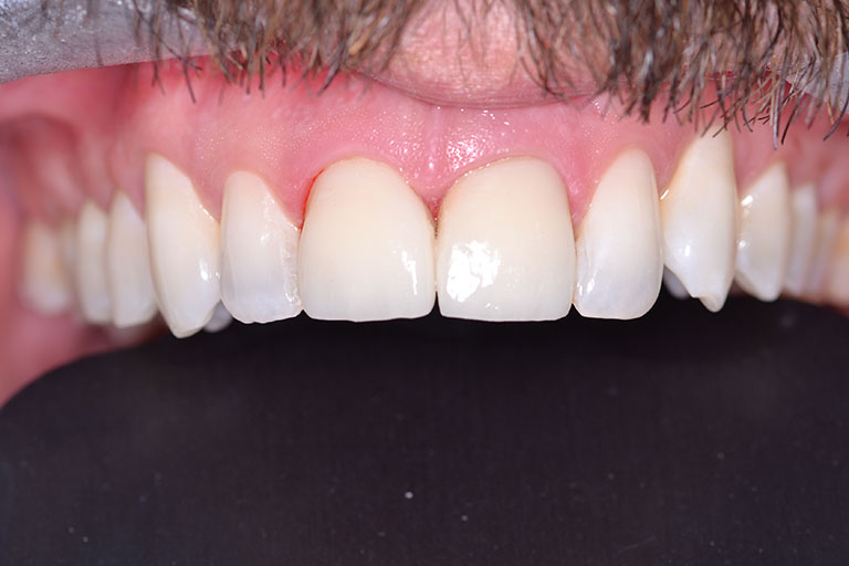 mans teeth with repaired fractured front tooth