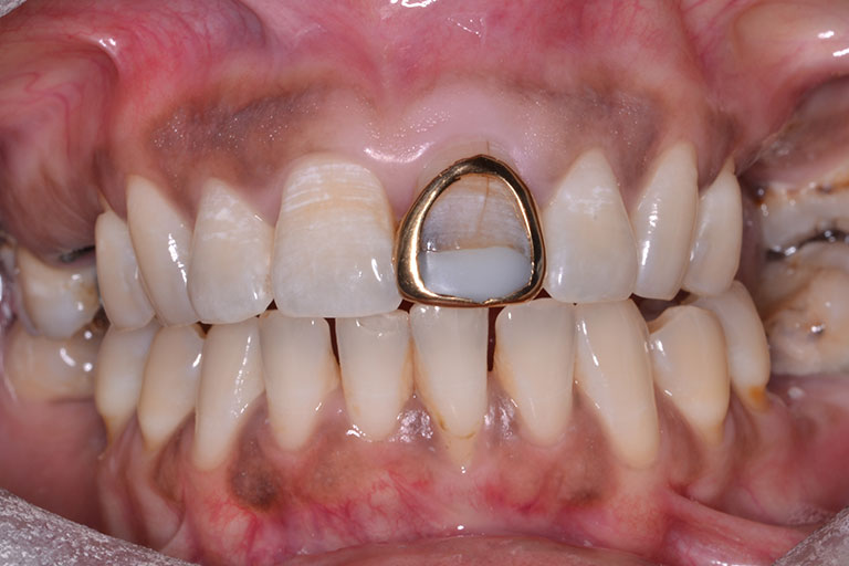 mans mouth showing gold crown needing replacement