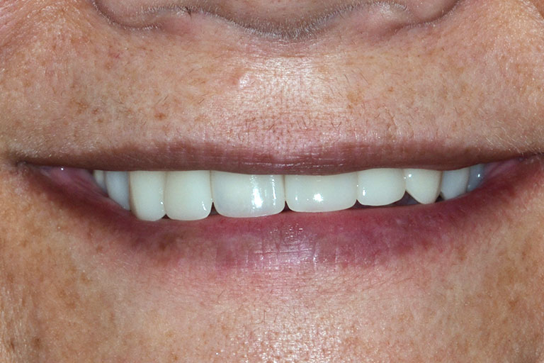 womans smile after makeover with straight white teeth