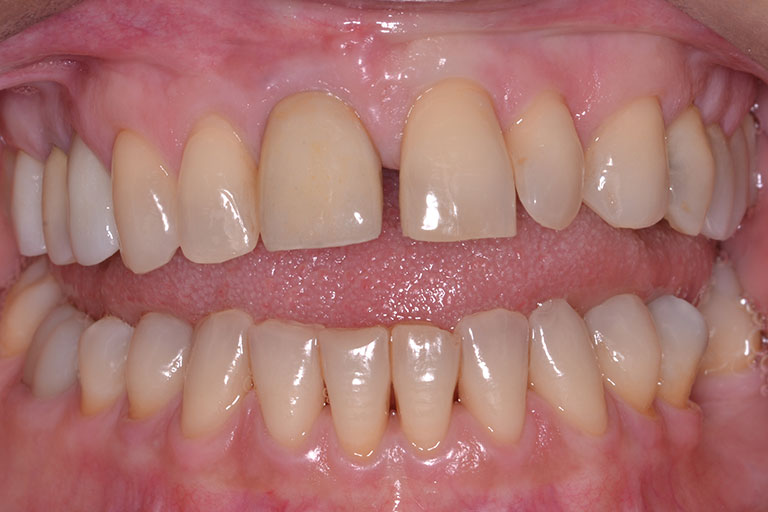 womans smile showing gapped discolored teeth